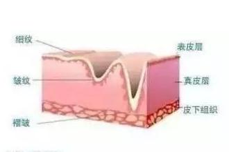 玻尿酸填充后有什么后遗症吗