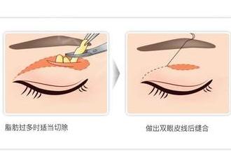 上眼皮下垂手术多久恢复