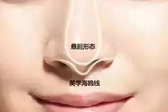 隆鼻子整形会感觉有异物吗