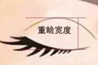 割双眼皮一般割多宽
