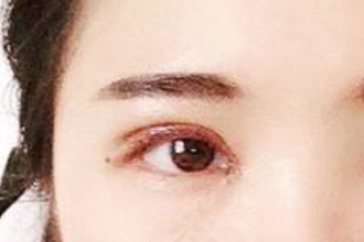 双眼皮后多久可以开眼角