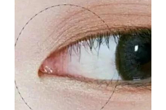 开眼角有什么危害