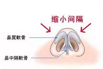 鼻翼宽大怎么改善