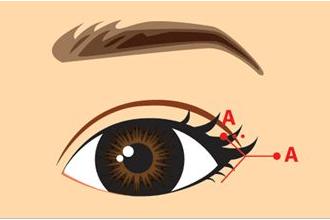 开眼角是开内眼角还是外眼角