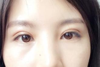45岁了可以做双眼皮整容吗