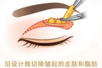 上海割双眼皮好不好
