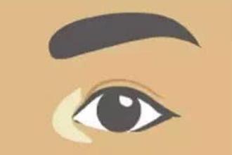 眼角整形多少钱