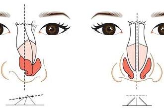 鼻骨矫正手术多长时间