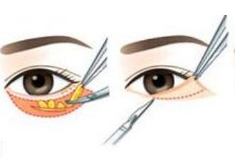 眼袋手术有疤痕吗