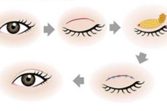 内双适合割什么样的双眼皮