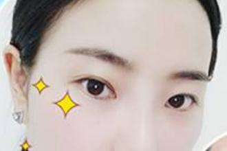 上海美莱医院做双眼皮好么