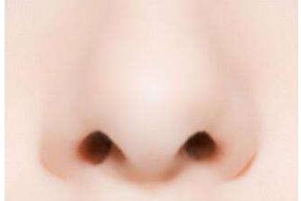 鼻孔缩小手术痛吗