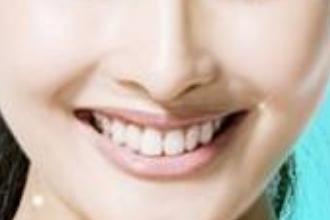 上海矫正牙齿价钱多少
