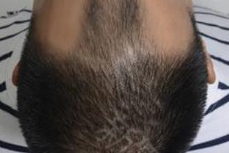 上海头发种植哪家医院好