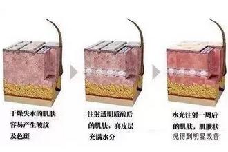 水光针能维持多久