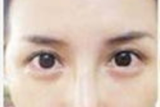 美莱整容去黑眼圈怎么样