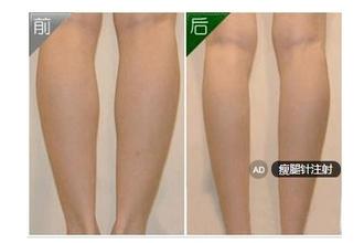 瘦腿针效果好吗