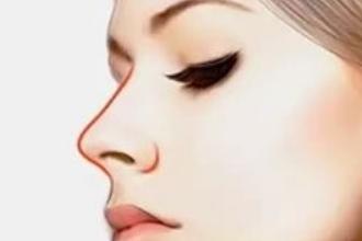 自体隆鼻贵吗