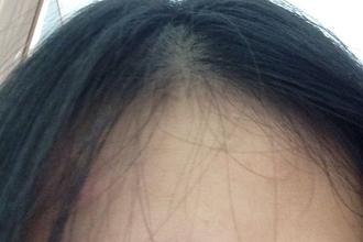 40岁女人头发稀疏怎么办