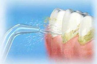 上海洗牙多少钱一次