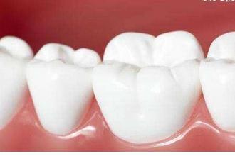 美白牙齿多少钱一次