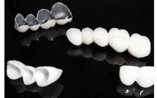 烤瓷牙贴面能使用多久