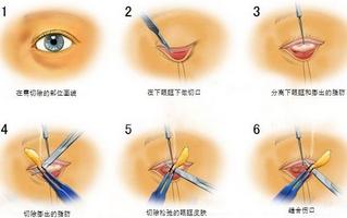 去眼袋上海哪家医院好