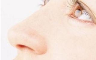 助骨做鼻子维持多久