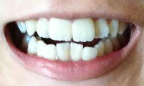 做牙齿矫正会不会很疼啊