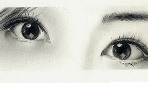双眼皮整形效果自然吗