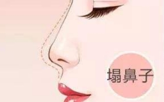假体隆鼻后可以加玻尿酸嘛