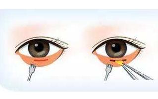 眼袋射频消融术价格上海哪里可以做