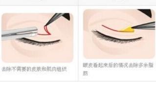 韩式双眼皮的原理