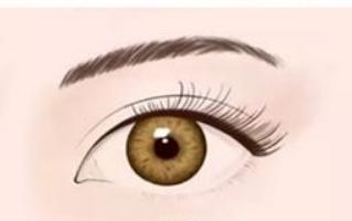 双眼皮埋线能维持多久
