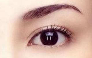 双眼皮三点式多久恢复