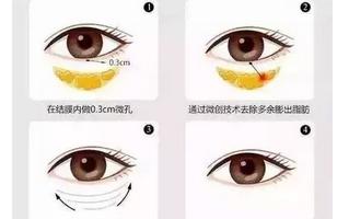 下眼袋如何消除