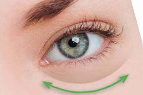 做激光去眼袋手术一般要多少钱