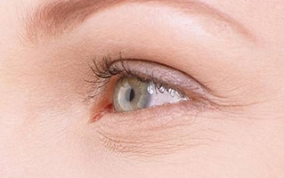 女人眼角皱纹怎么去掉
