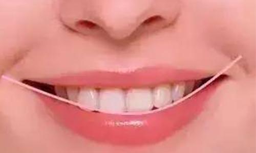 牙齿比较黄怎么才能变白啊