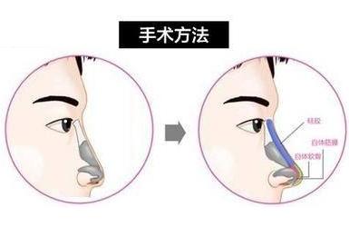 上海鼻小柱延长用什么材料
