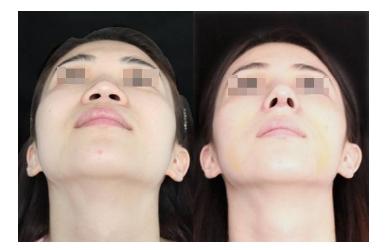 上海鼻孔大怎么整形