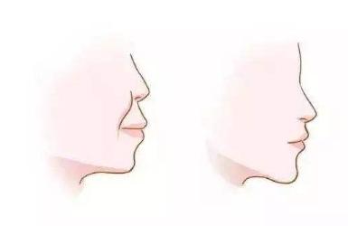 整牙会改变脸型吗