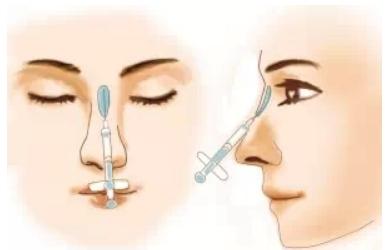 玻尿酸隆鼻有没有危害
