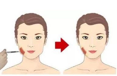 打注射瘦脸会面瘫吗