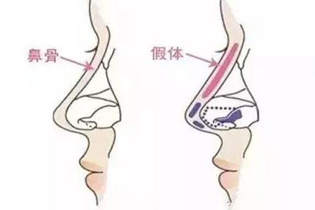 假体隆鼻手术一般价格是多少钱