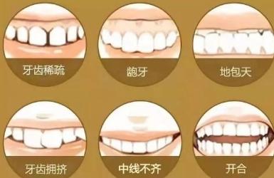 矫正牙齿把牙把刁回对以后生活有影响吗