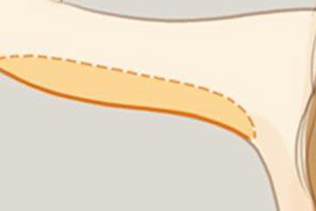 手臂抽脂减肥要多久恢复自然