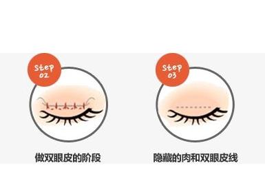 双眼皮那家技术最好