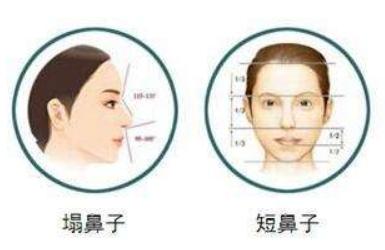 上海鼻子谁做的好