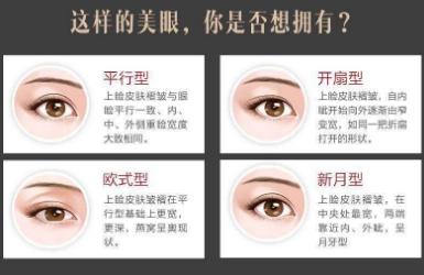 双眼皮需要多久才能恢复